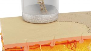 microdermabraziune-diamant-tratarea-vergeturilor-chocolat-salon